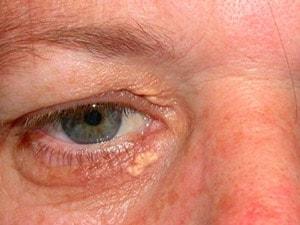 Fibromen (steelwratje), goedaardige uitstulpinkjes, worden verwijdert met coagulatie