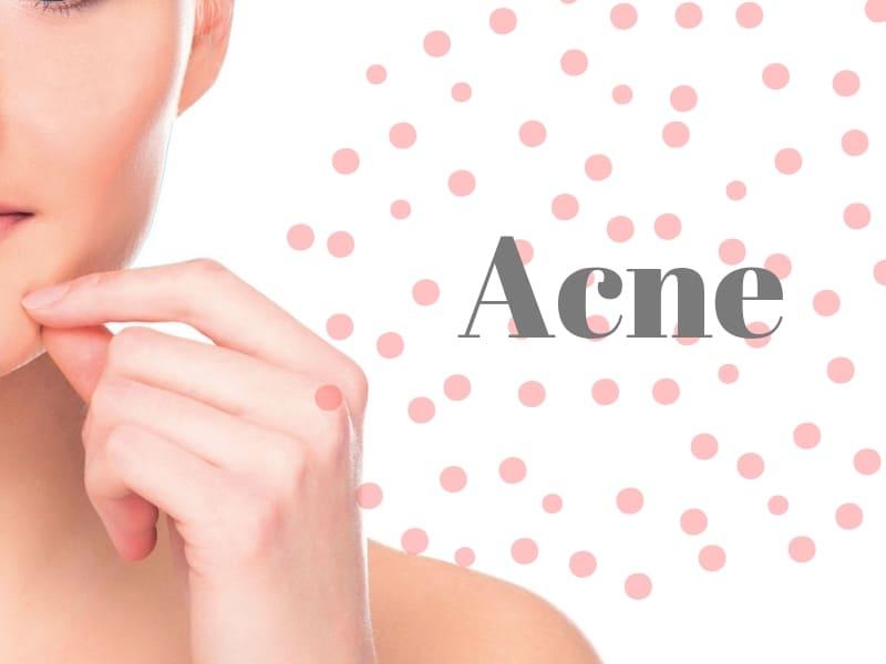 Acne-huidverzorging-meditopics